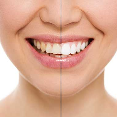 Teeth Whitening in Avon